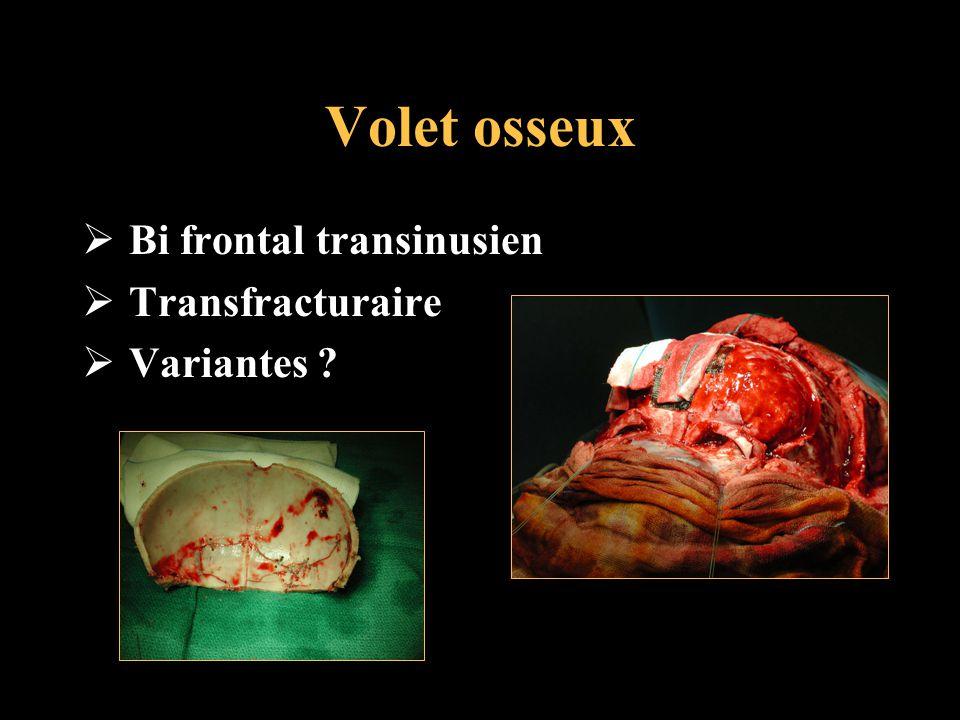 Volet osseux Bi frontal transinusien Transfracturaire Variantes