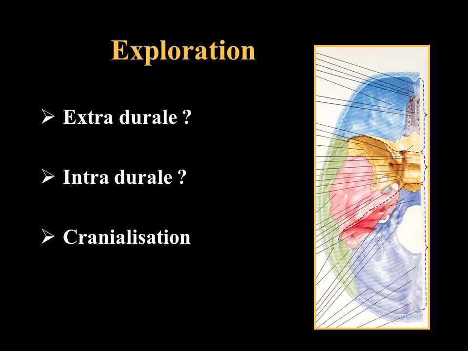 Exploration Extra durale Intra durale Cranialisation