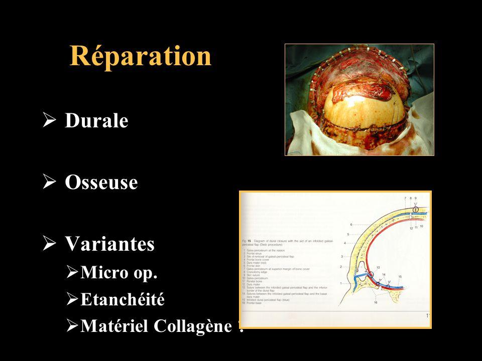Réparation Durale Osseuse Variantes Micro op. Etanchéité