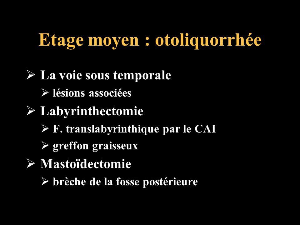 Etage moyen : otoliquorrhée