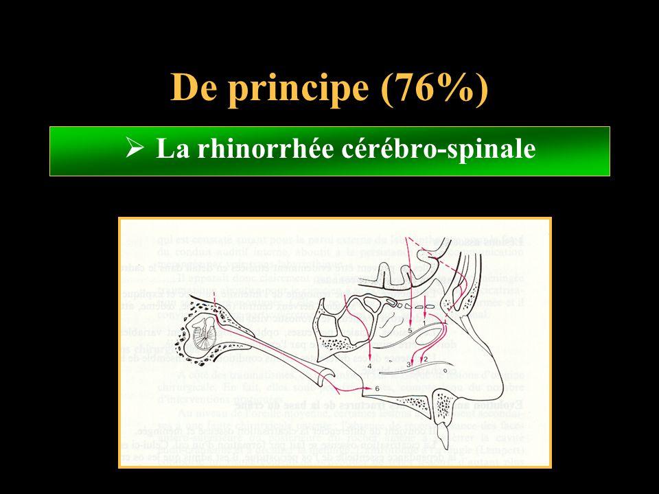 La rhinorrhée cérébro-spinale