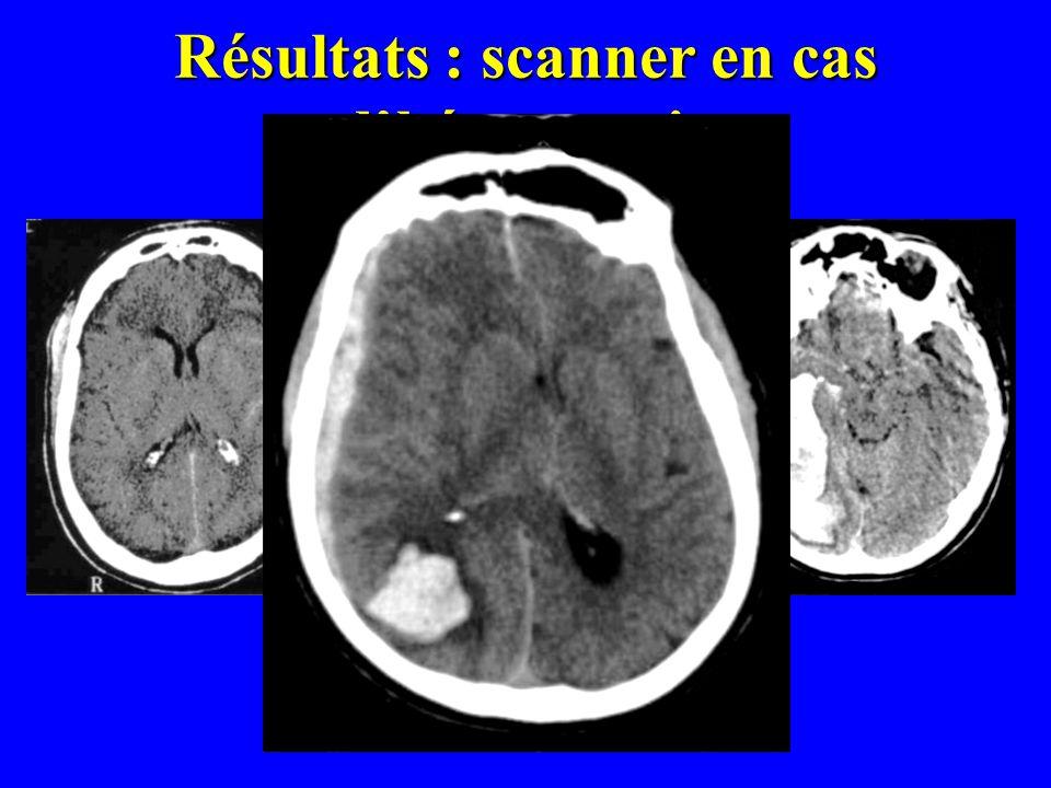 Résultats : scanner en cas d'hémorragie