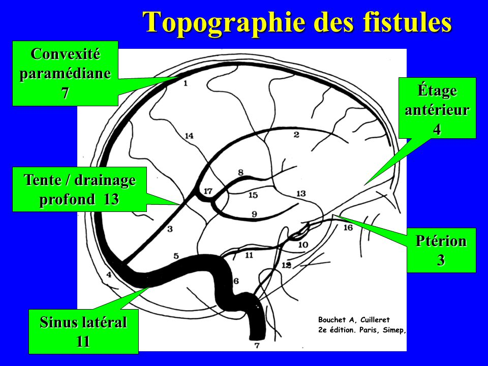 Topographie des fistules