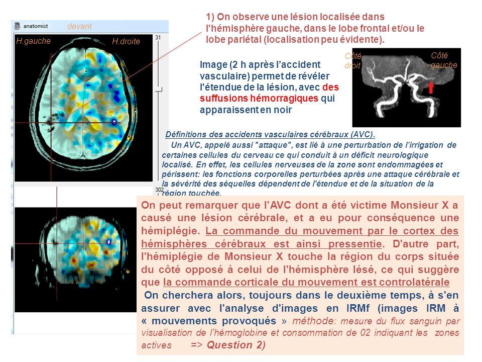 Définitions des accidents vasculaires cérébraux (AVC).
