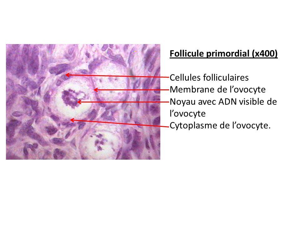 Follicule primordial (x400)