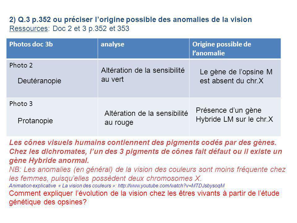 2) Q.3 p.352 ou préciser l'origine possible des anomalies de la vision