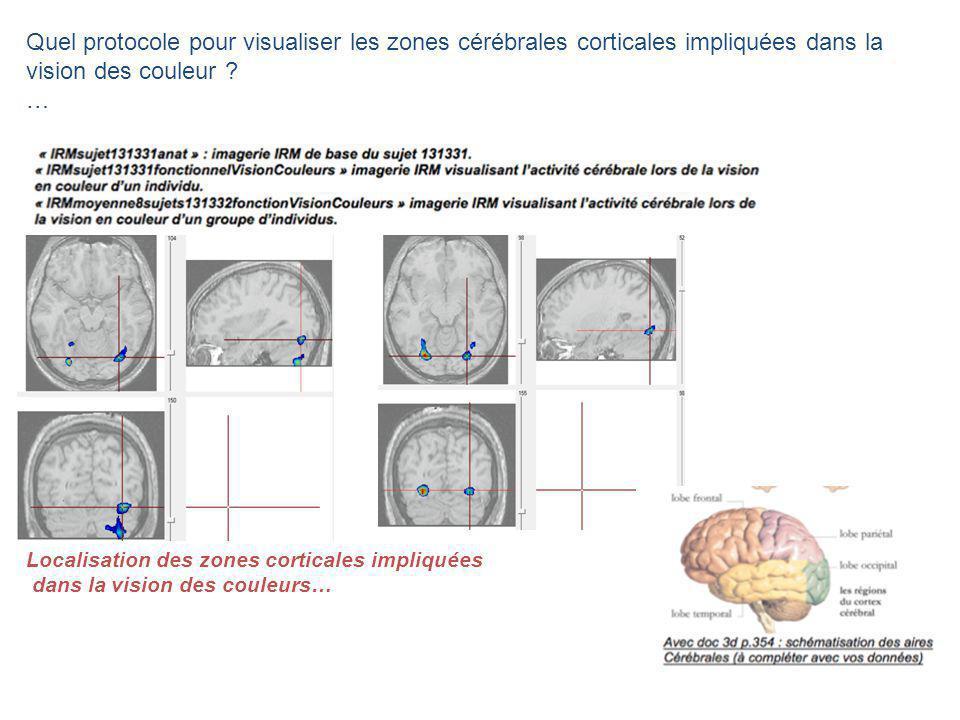 Quel protocole pour visualiser les zones cérébrales corticales impliquées dans la