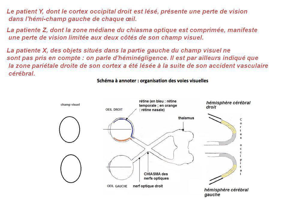 Le patient Y, dont le cortex occipital droit est lésé, présente une perte de vision