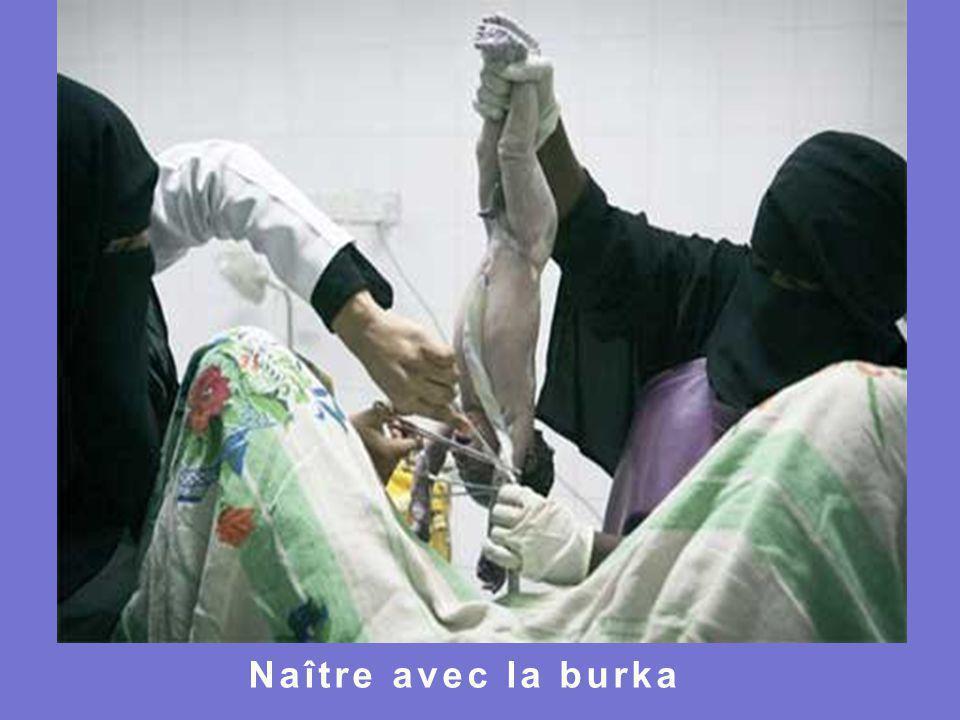 Naître avec la burka