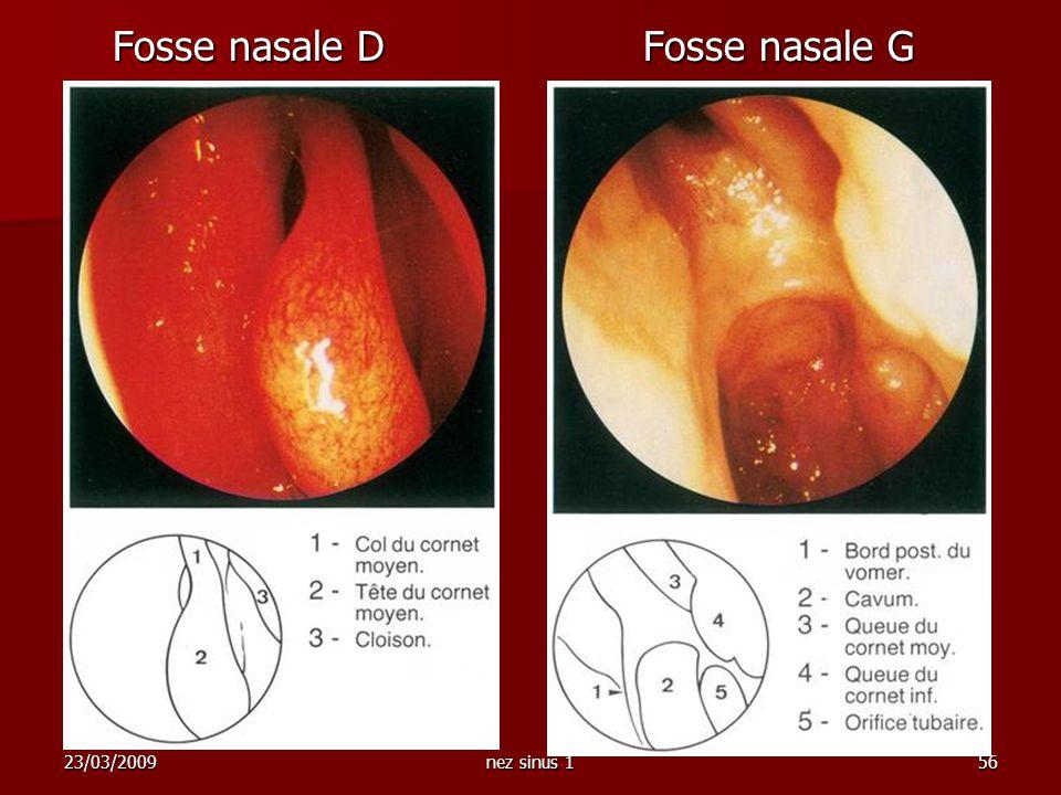 Fosse nasale D Fosse nasale G