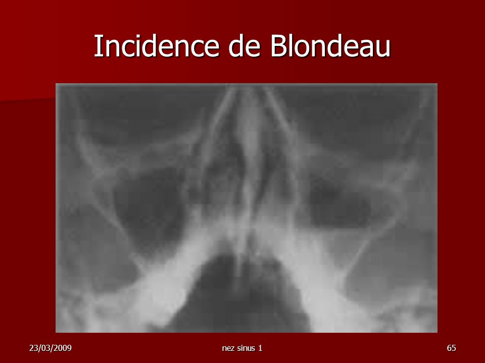 Incidence de Blondeau 23/03/2009 nez sinus 1