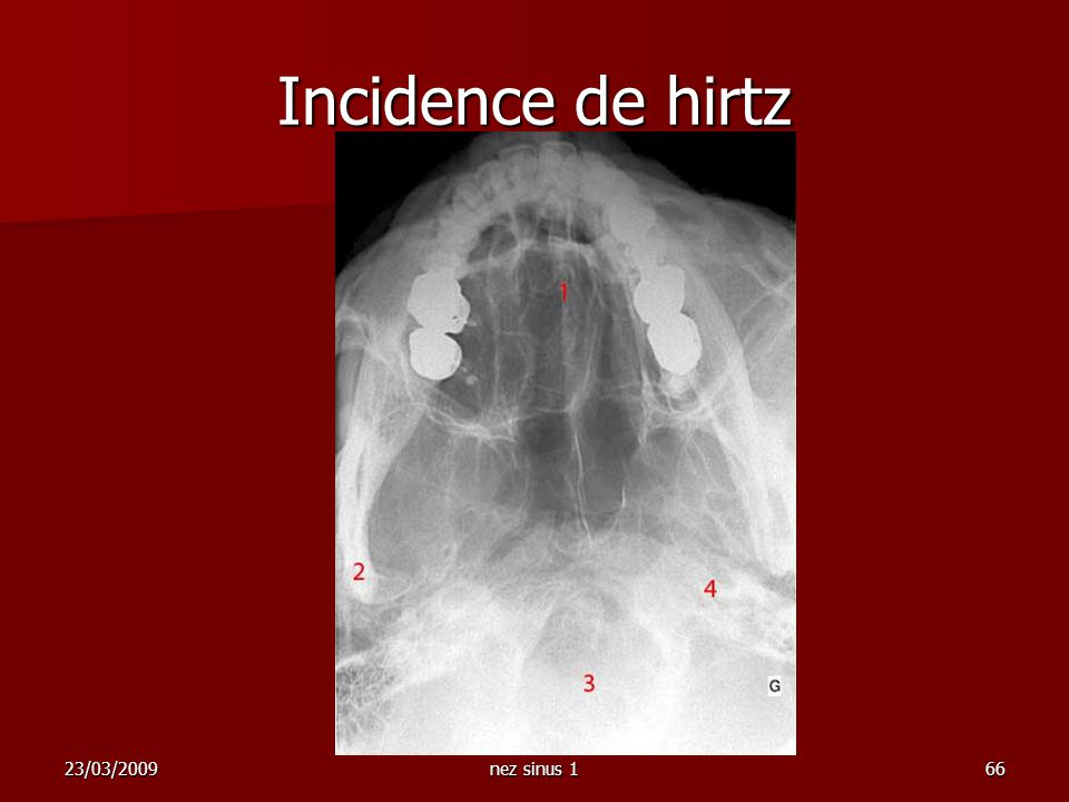 Incidence de hirtz 23/03/2009 nez sinus 1