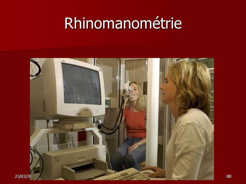 Rhinomanométrie 23/03/2009 nez sinus 1