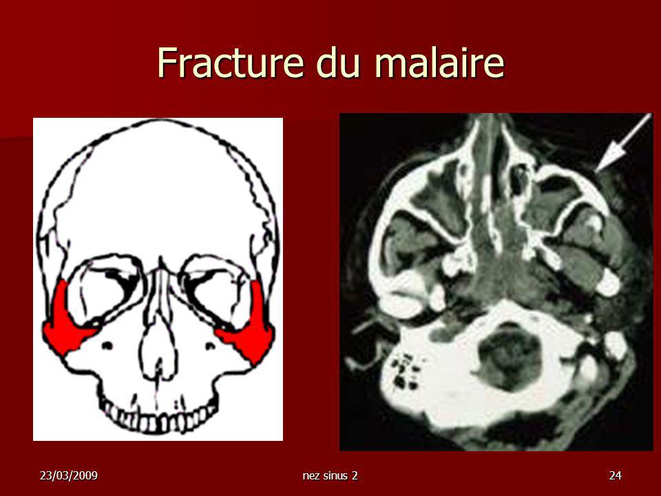 Fracture du malaire 23/03/2009 nez sinus 2