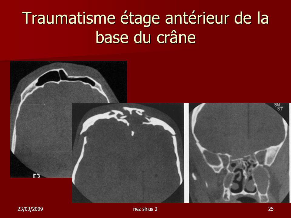 Traumatisme étage antérieur de la base du crâne