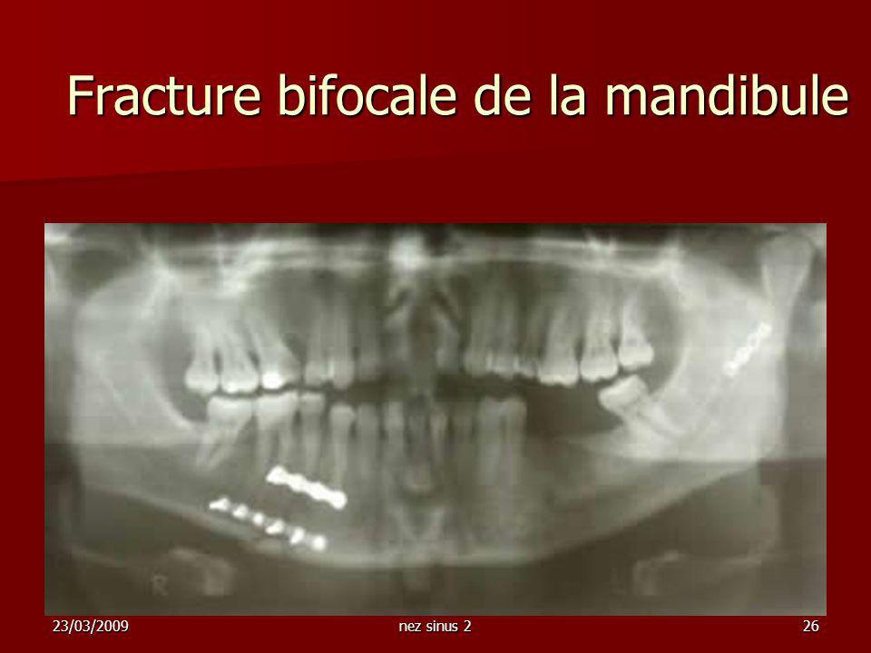 Fracture bifocale de la mandibule
