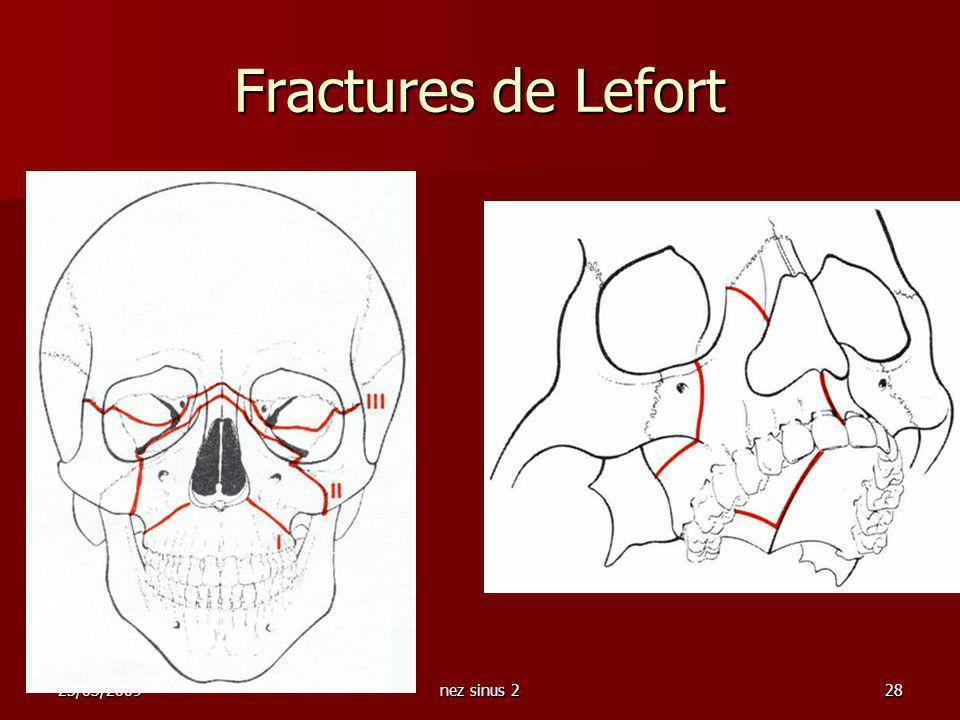 Fractures de Lefort 23/03/2009 nez sinus 2