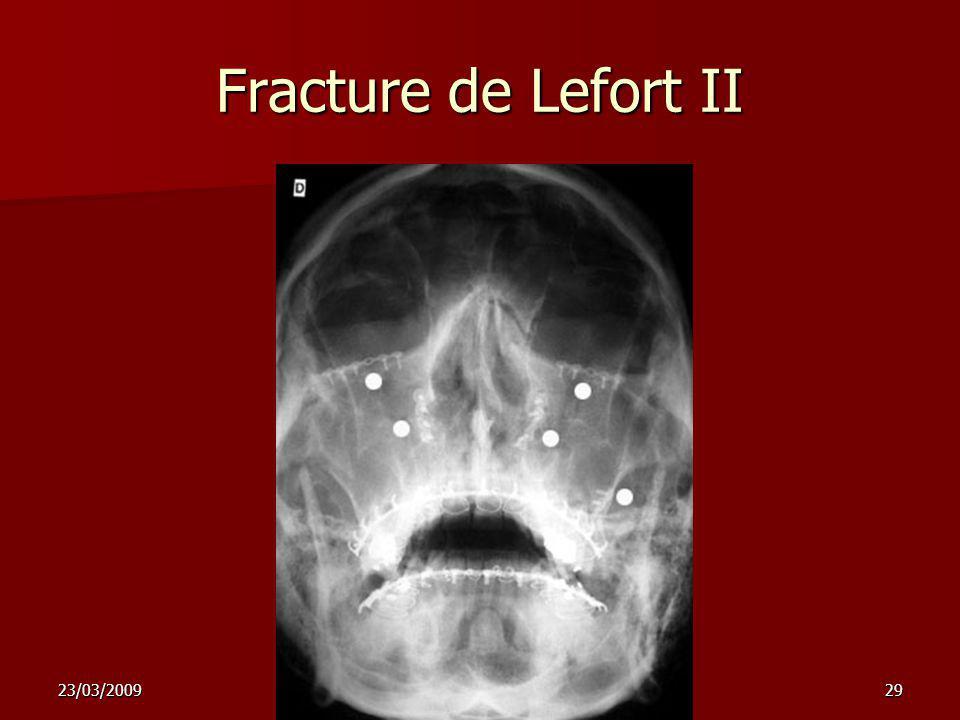 Fracture de Lefort II 23/03/2009 nez sinus 2