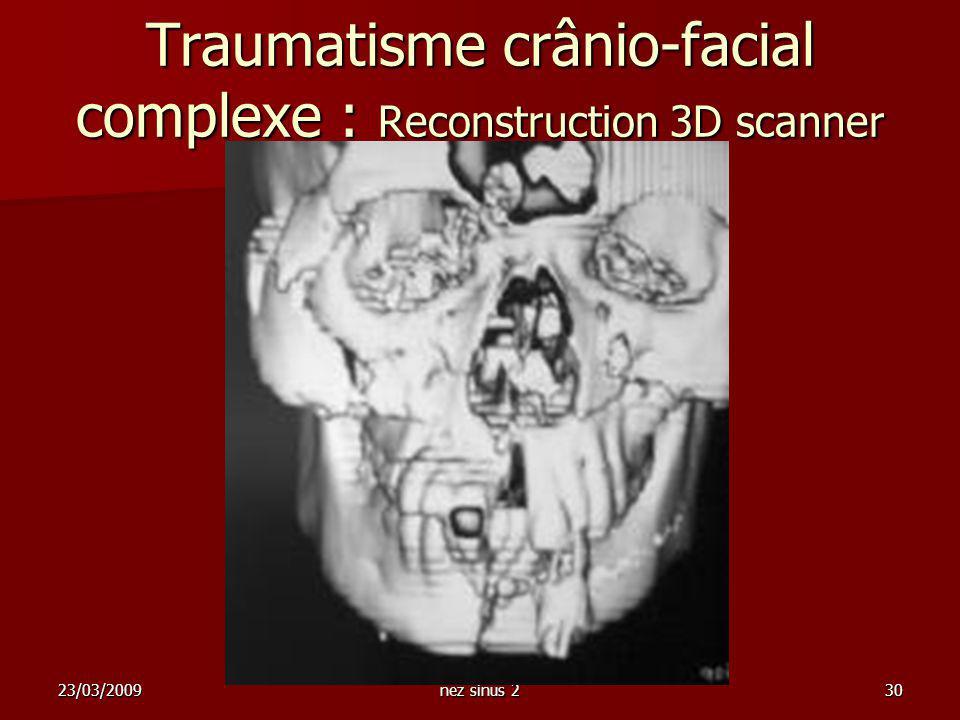 Traumatisme crânio-facial complexe : Reconstruction 3D scanner