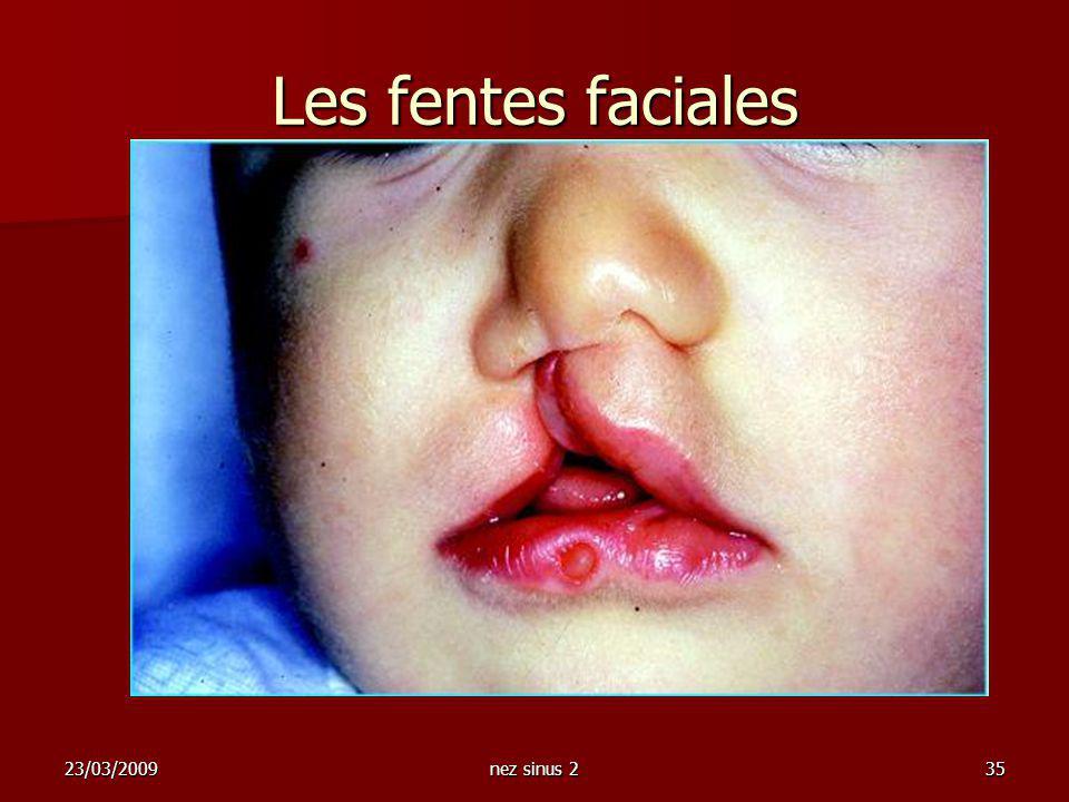 Les fentes faciales 23/03/2009 nez sinus 2