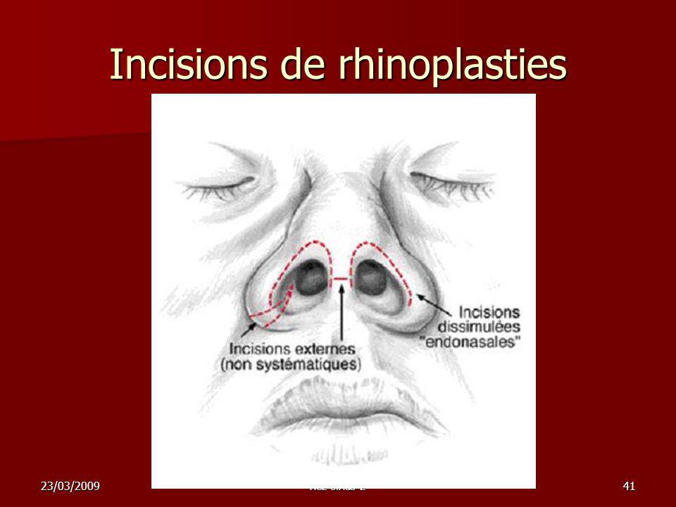 Incisions de rhinoplasties