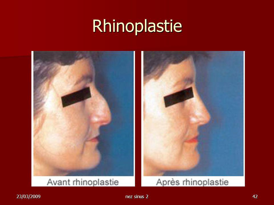 Rhinoplastie 23/03/2009 nez sinus 2