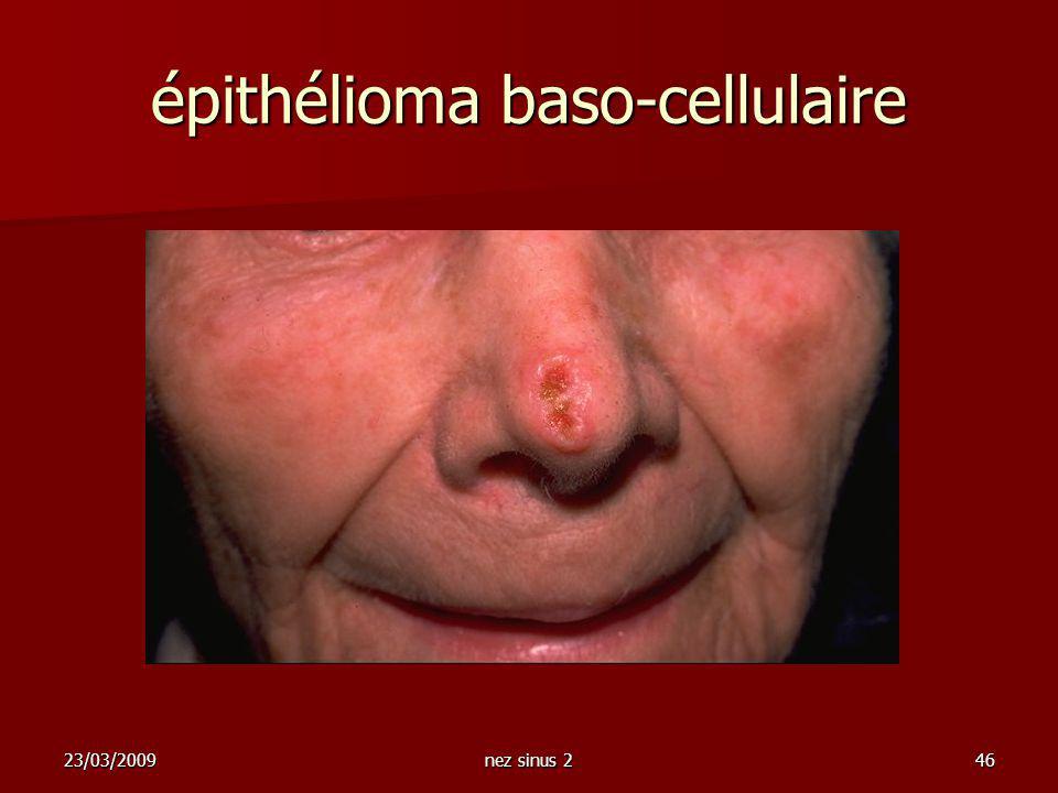 épithélioma baso-cellulaire