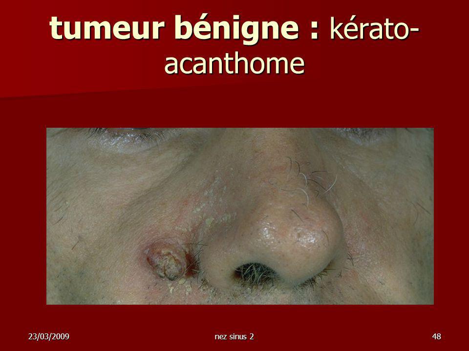 tumeur bénigne : kérato- acanthome