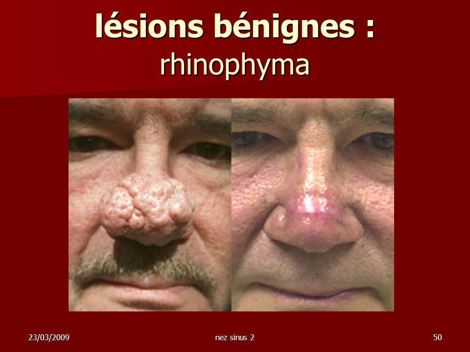 lésions bénignes : rhinophyma