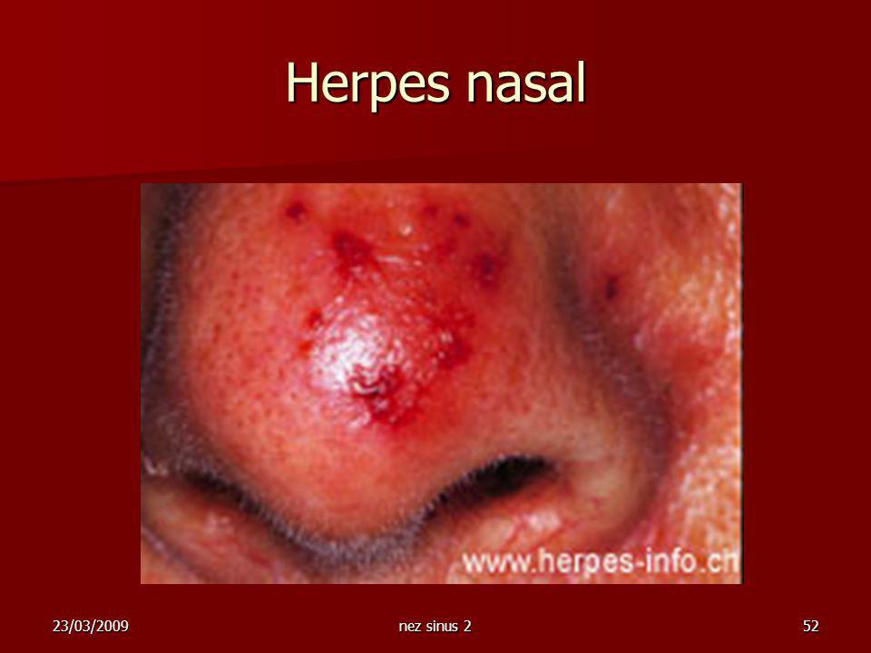Herpes nasal 23/03/2009 nez sinus 2