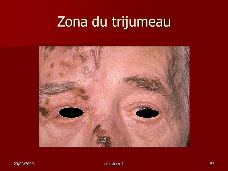 Zona du trijumeau 23/03/2009 nez sinus 2