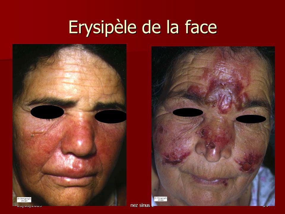 Erysipèle de la face 23/03/2009 nez sinus 2