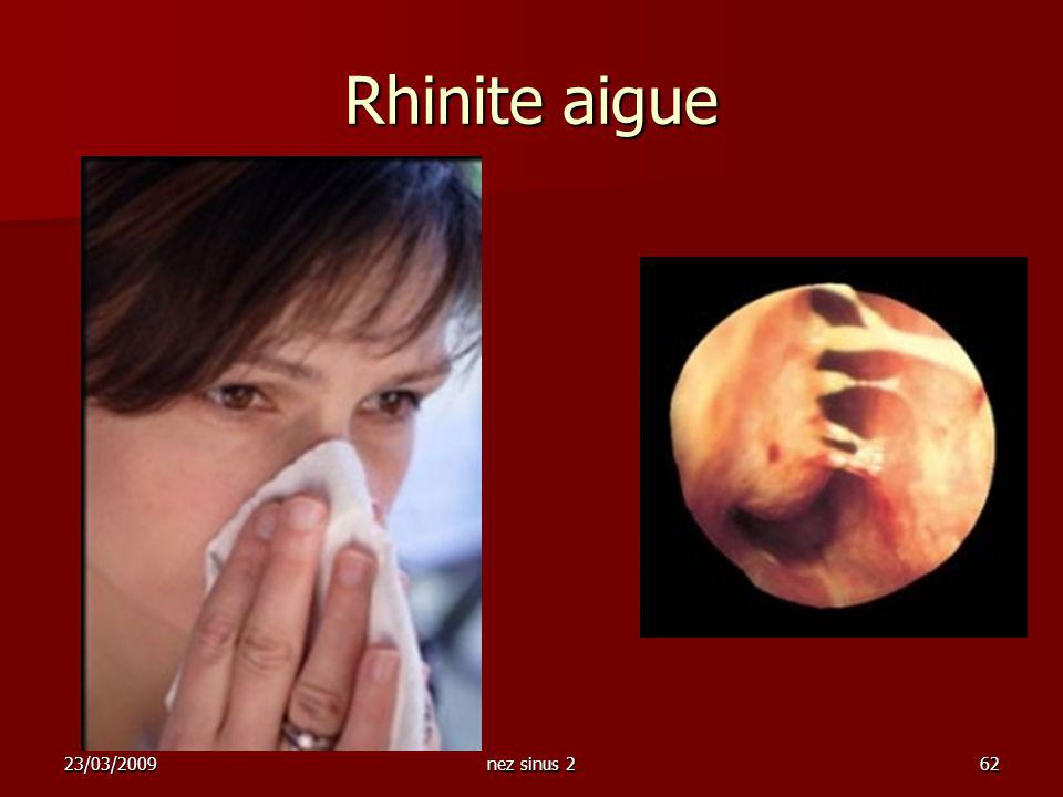 Rhinite aigue 23/03/2009 nez sinus 2