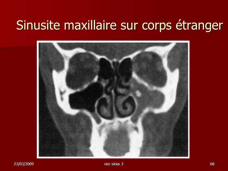 Sinusite maxillaire sur corps étranger