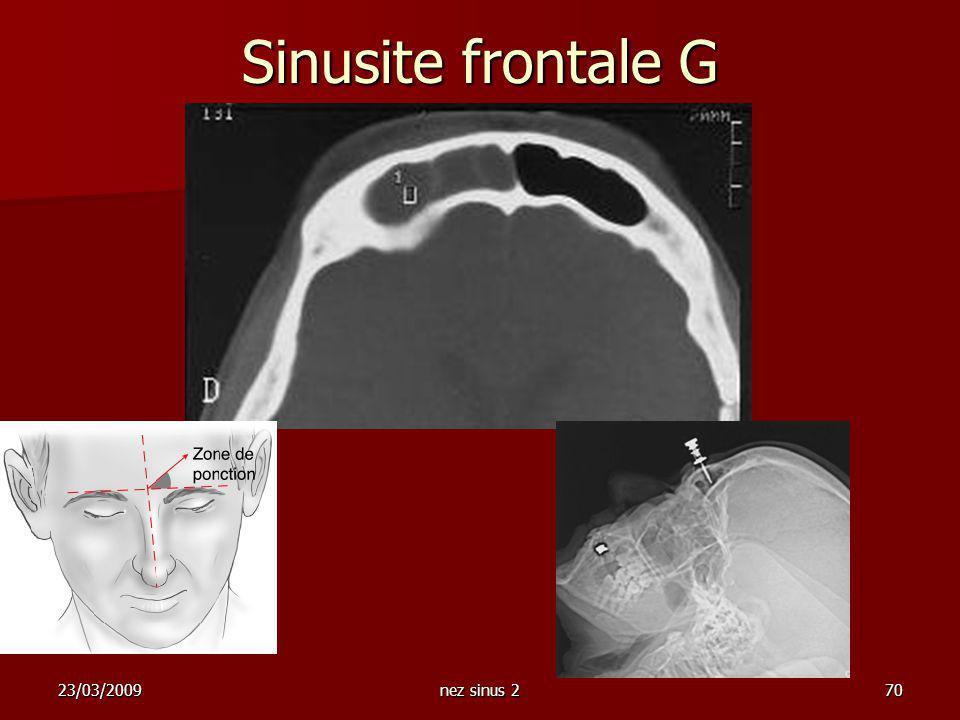 Sinusite frontale G 23/03/2009 nez sinus 2