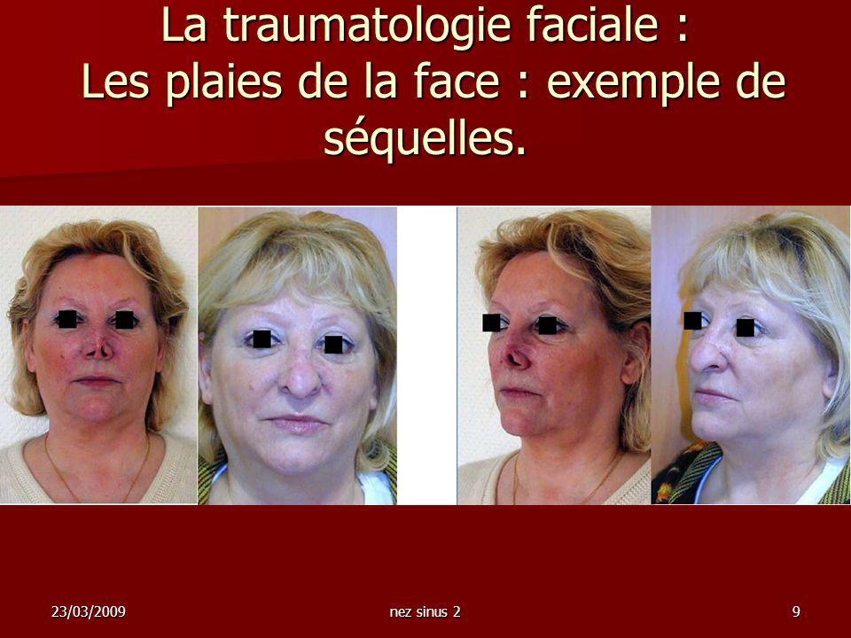 La traumatologie faciale : Les plaies de la face : exemple de séquelles.