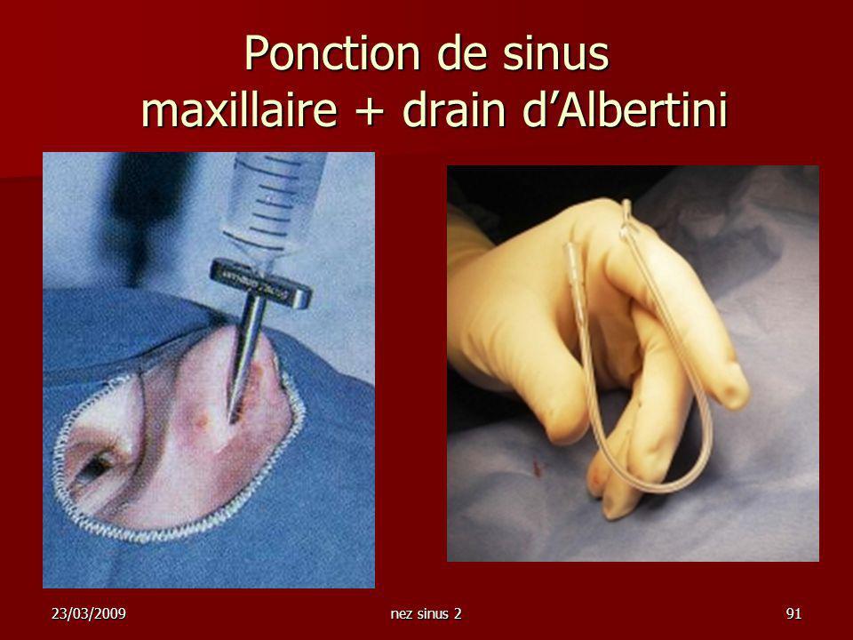 Ponction de sinus maxillaire + drain d'Albertini