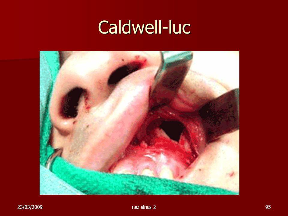 Caldwell-luc 23/03/2009 nez sinus 2