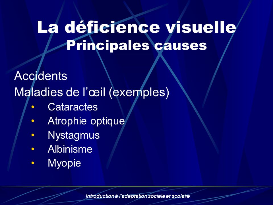 La déficience visuelle Principales causes