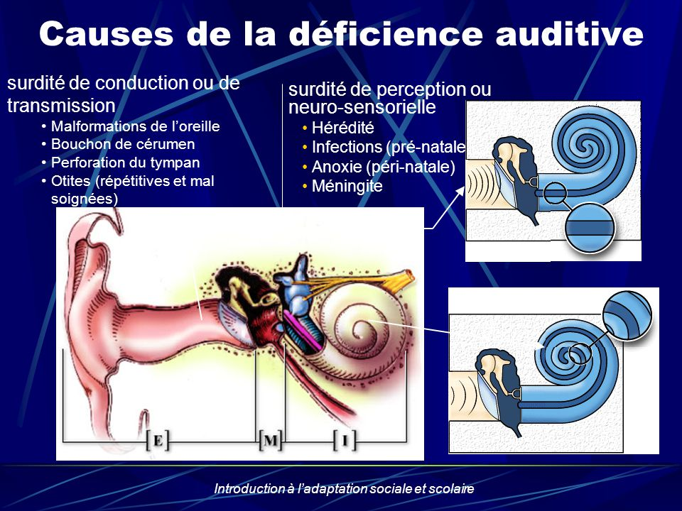 Causes de la déficience auditive