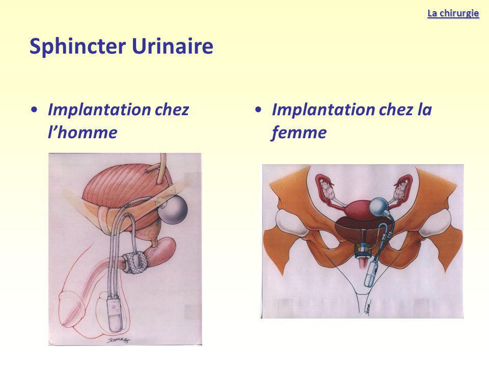 Sphincter Urinaire Implantation chez l'homme