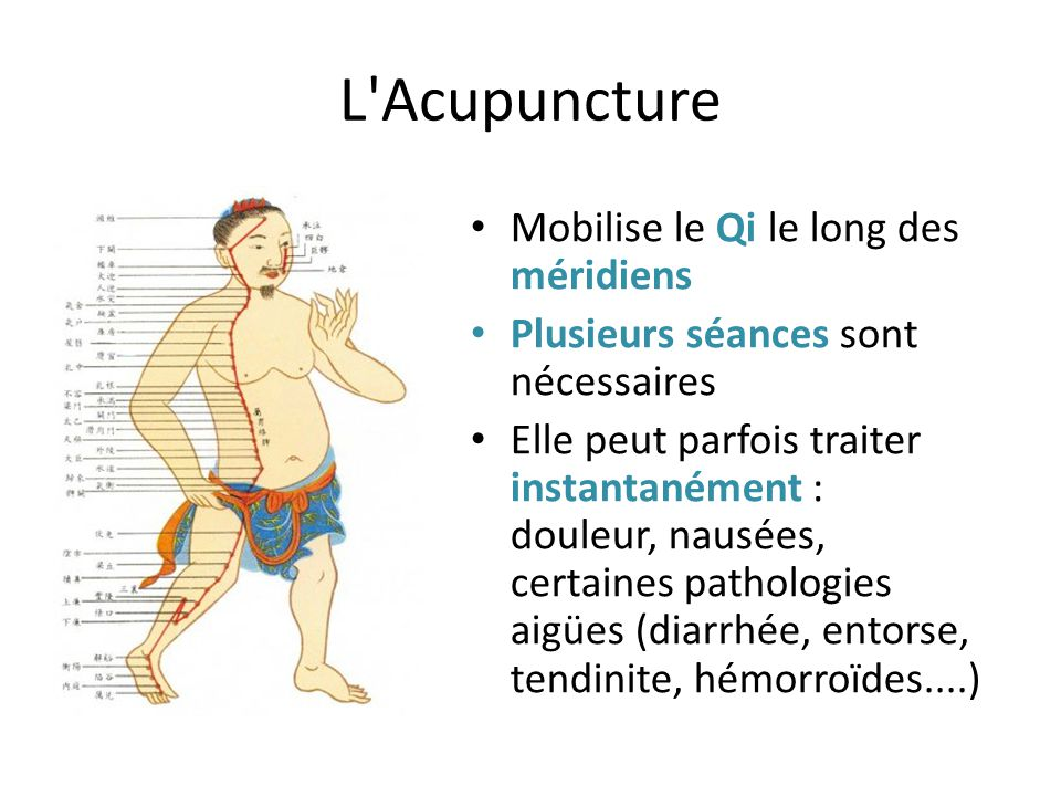 L Acupuncture Mobilise le Qi le long des méridiens