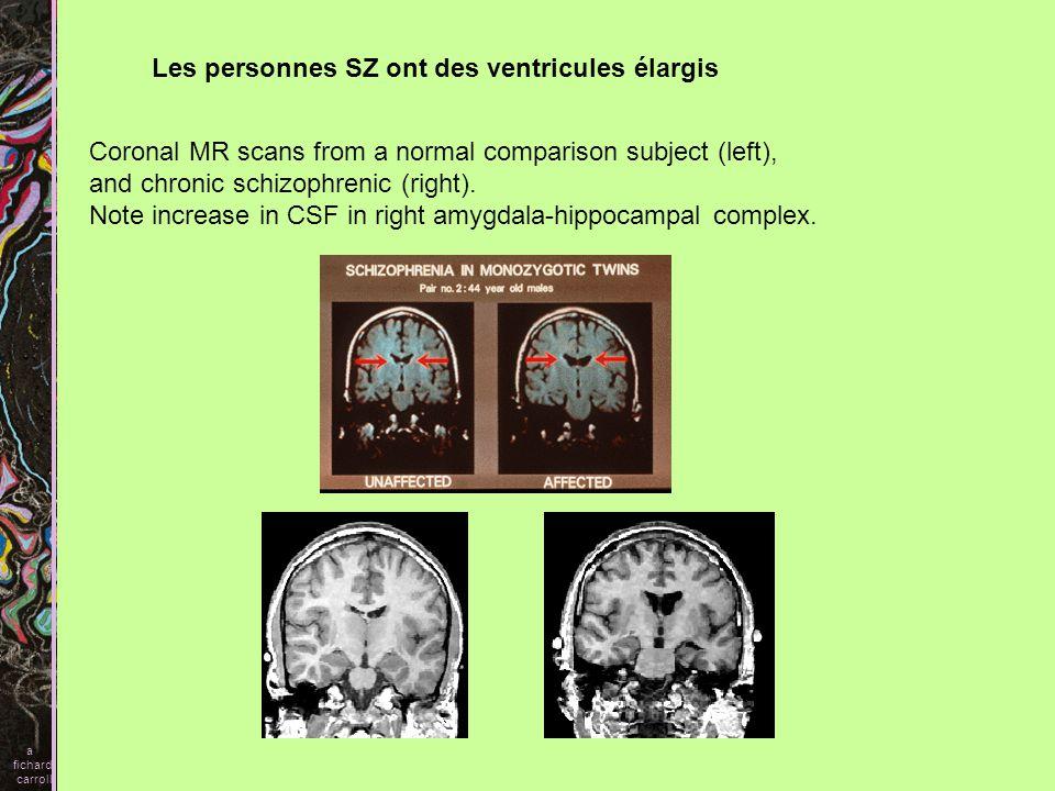 Les personnes SZ ont des ventricules élargis