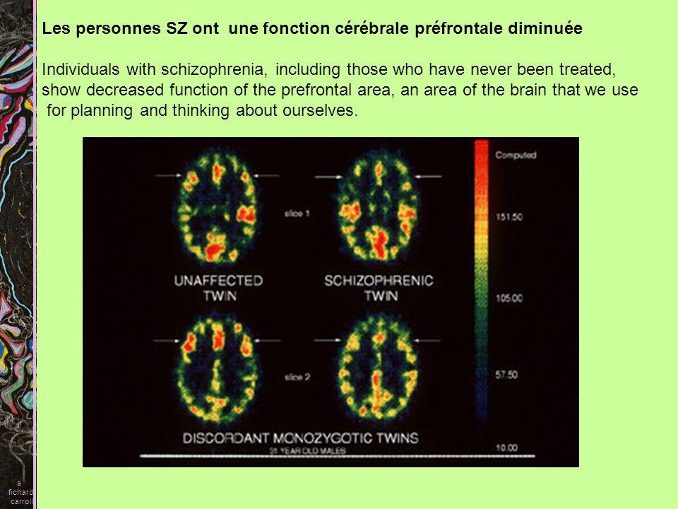Les personnes SZ ont une fonction cérébrale préfrontale diminuée