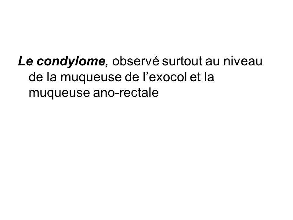 Le condylome, observé surtout au niveau de la muqueuse de l'exocol et la muqueuse ano-rectale