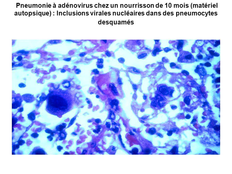 Pneumonie à adénovirus chez un nourrisson de 10 mois (matériel autopsique) : Inclusions virales nucléaires dans des pneumocytes desquamés