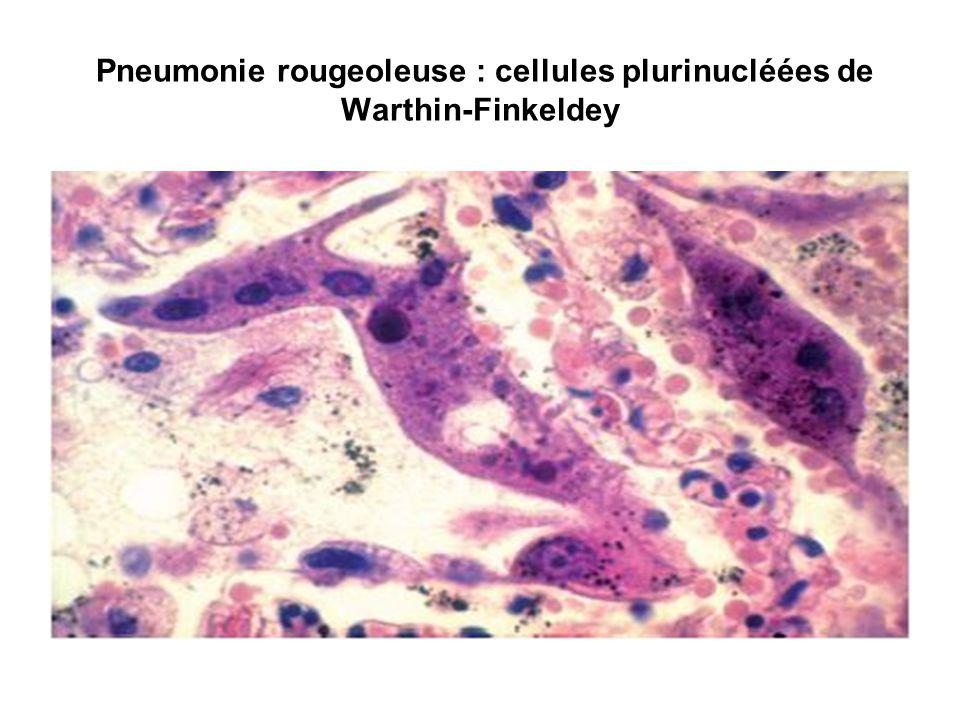 Pneumonie rougeoleuse : cellules plurinucléées de Warthin-Finkeldey