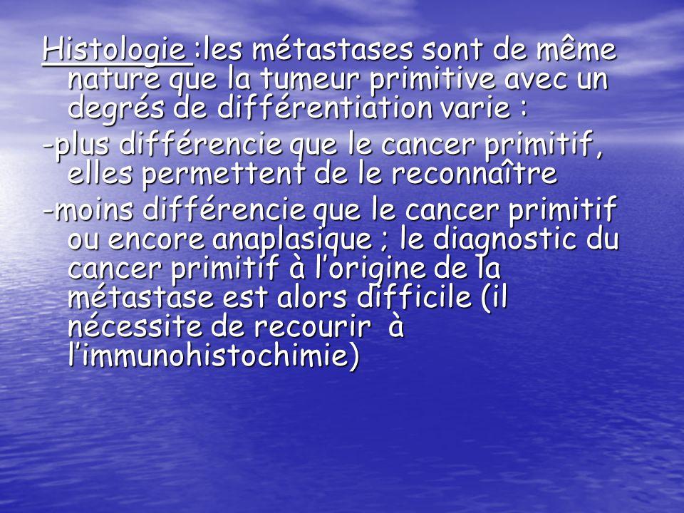 Histologie :les métastases sont de même nature que la tumeur primitive avec un degrés de différentiation varie :