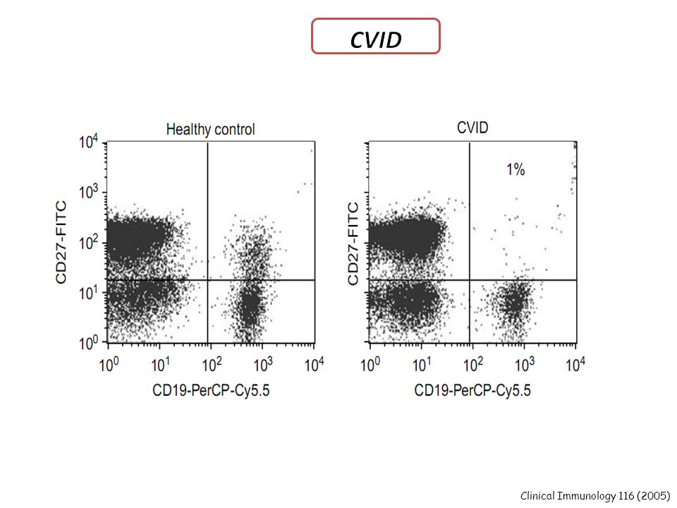 CVID Patients with less than 0.4% switched memory B cells (CD19+CD27+IgM-IgD-)