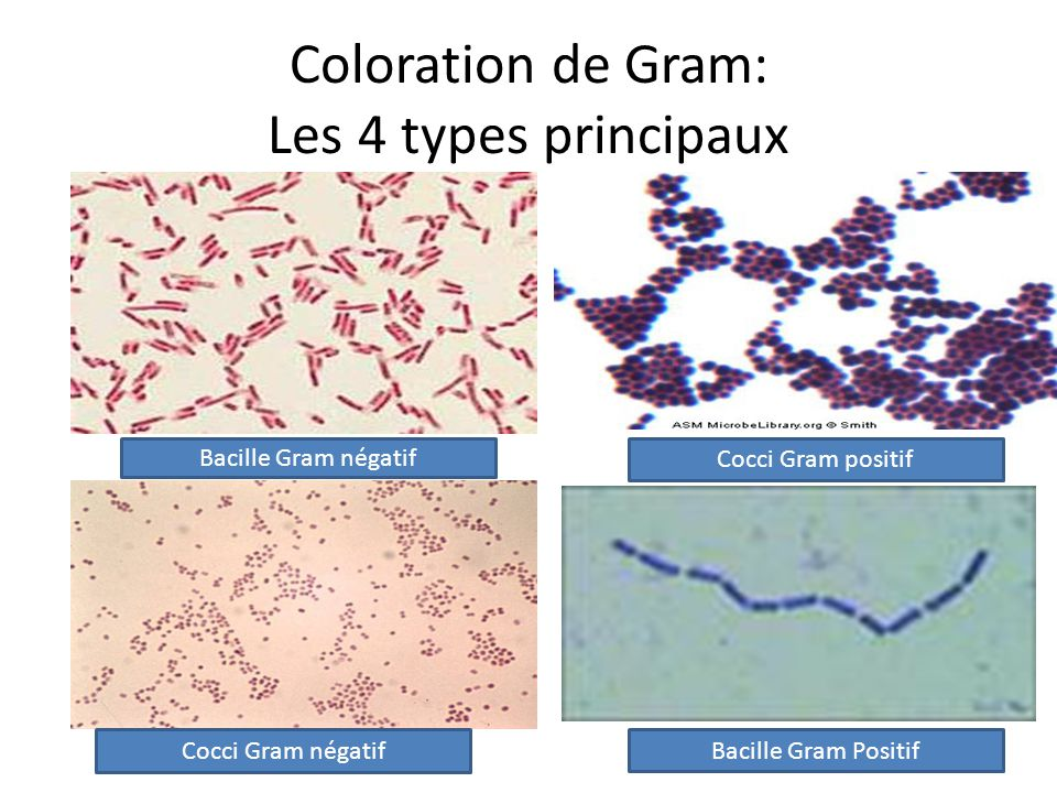 Coloration de Gram: Les 4 types principaux